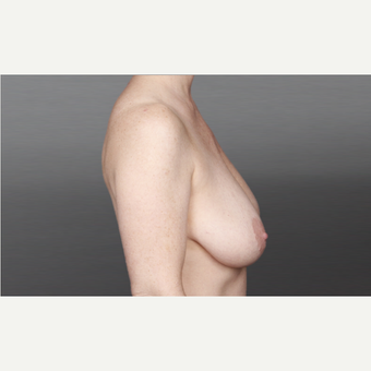 35-44 year old woman treated with Breast Lift before 3028140
