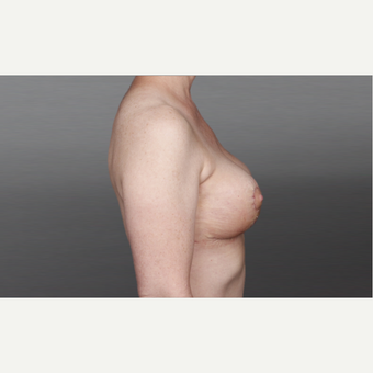 35-44 year old woman treated with Breast Lift after 3028140