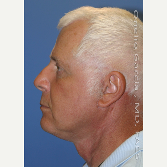 55-64 year old man treated with Facelift after 3008506