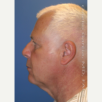 55-64 year old man treated with Facelift before 3008506