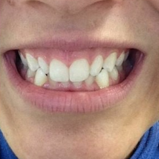 18-24 year old woman treated with Invisalign