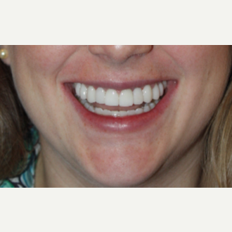 22 year old female with 2 dental implants  with eMax crowns and 8 eMax veneers. after 3126687