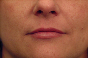 Injectable Filler after 149357