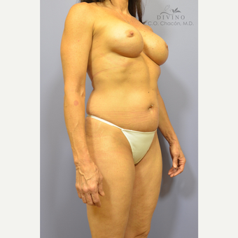 45-54 year old woman treated with Mommy Makeover before 3421651