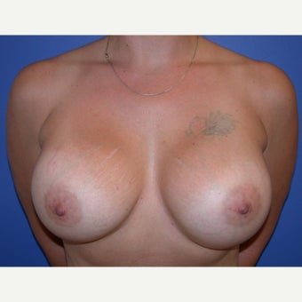Breast Implant Revision after 1686822