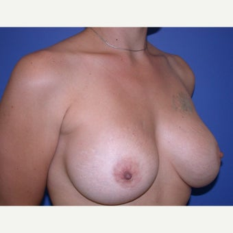Breast Implant Revision 1686822