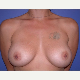 Breast Implant Revision before 1686822