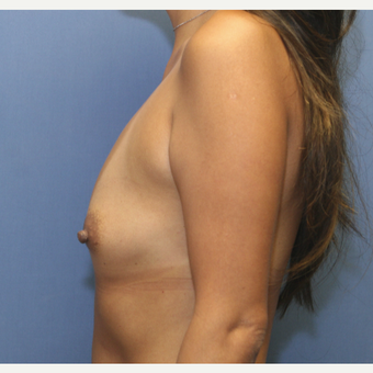 35-44 year old woman treated with Breast Augmentation before 3524526