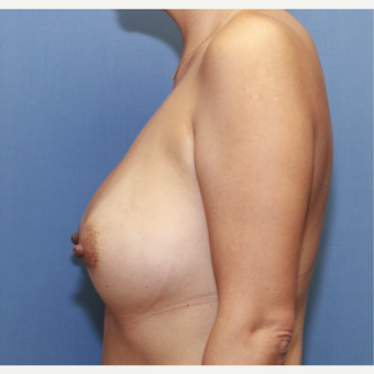 35-44 year old woman treated with Breast Augmentation after 3524526