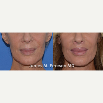 45-54 year old woman treated with Lip Lift before 3117314