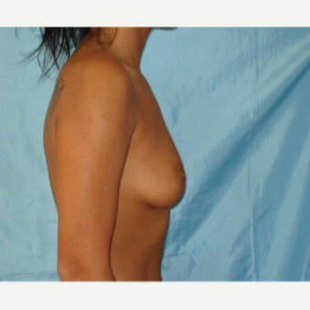25-34 year old woman treated with Breast Augmentation before 3841744