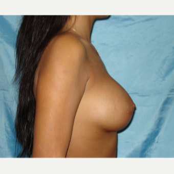 25-34 year old woman treated with Breast Augmentation after 3841744