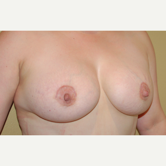 35-44 year old woman treated with Breast Implants after 3719194