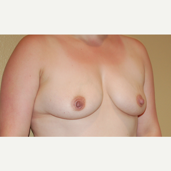 35-44 year old woman treated with Breast Implants before 3719194