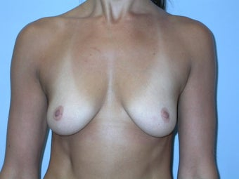 Breast Augmentation 500 cc Silicone Implants before 90238