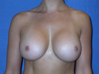 Breast Augmentation 500 cc Silicone Implants after 90238