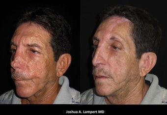 55-64 year old man treated with Facial Reconstructive Surgery
