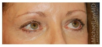 Eye Bag Treatment after 1256433