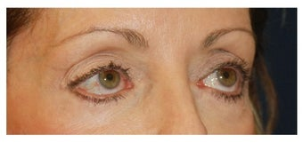 Eye Bag Treatment before 1256433