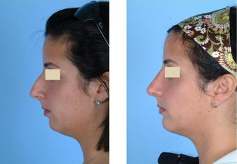Rhinoplasty and Chin Implant before 93643