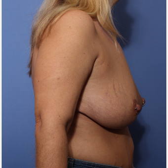 35-44 year old woman treated with Breast Lift before 3505928