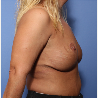 35-44 year old woman treated with Breast Lift after 3505928