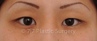 25 y.o. Asian female for Asian upper blepharoplasty before 1218104