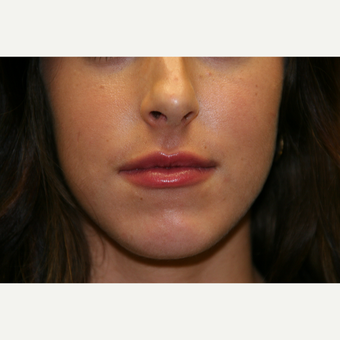 18-24 year old woman treated with Juvederm after 2998788