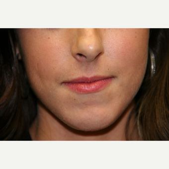 18-24 year old woman treated with Juvederm before 2998788