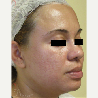 25-34 year old woman treated with Fractional CO2 Laser after 3375115