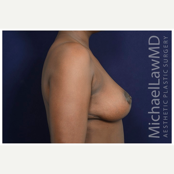 35-44 year old woman treated with Breast Reduction after 3174586