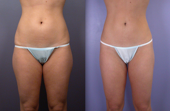 Liposuction before 289359