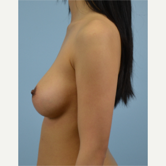 25-34 year old woman treated with Breast Fat Transfer after 3432072