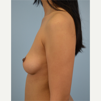 25-34 year old woman treated with Breast Fat Transfer before 3432072