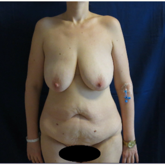45-54 year old woman treated with Mommy Makeover before 3796855