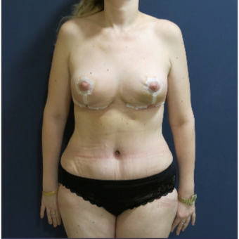 45-54 year old woman treated with Mommy Makeover after 3796855