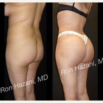 18-24 year old woman treated with Brazilian Butt Lift before 3680269