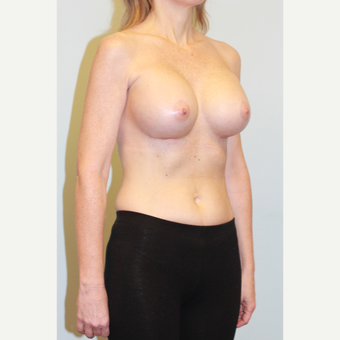 35-44 year old woman treated with Breast Implants after 3026950