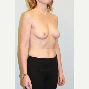 35-44 year old woman treated with Breast Implants before 3026950