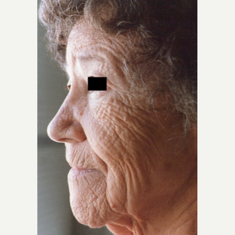 75 and up year old woman treated with Chemical Peel before 3543245