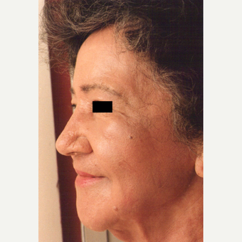 75 and up year old woman treated with Chemical Peel after 3543245