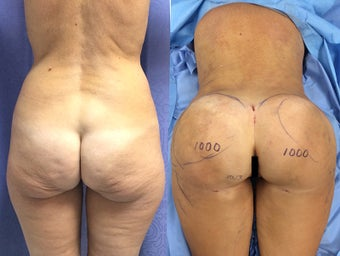 BBL in a 54 Year Old Patient With Sagging Buttocks before 1511898