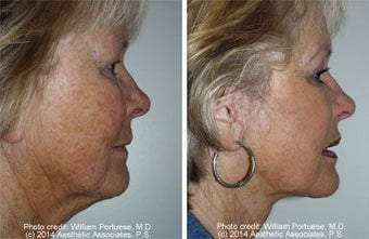 Facelift with dermabrasion before 91402