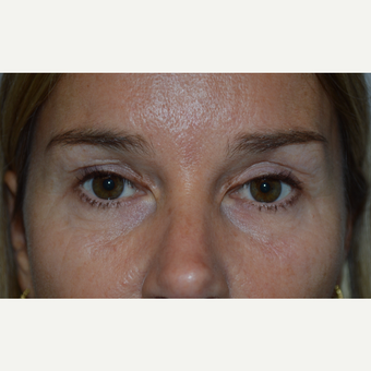 45-54 year old woman treated with Eyelid Surgery before 3686617