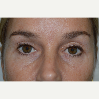 45-54 year old woman treated with Eyelid Surgery after 3686617