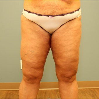 45-54 year old woman requesting Thigh Lift after 3455521