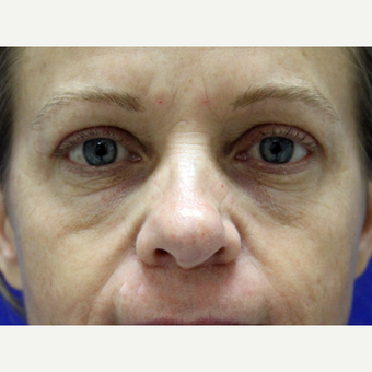 45-54 year old woman treated with Eyelid Surgery after 3239453