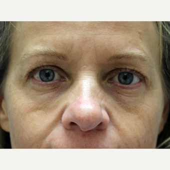 45-54 year old woman treated with Eyelid Surgery before 3239453