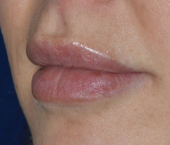 Lip Injections 985741