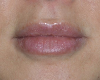 Lip Injections after 985741